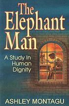 The elephant man; a study in human dignity