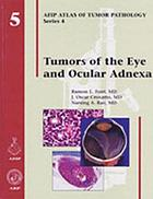 Tumors of the eye and ocular adnexa
