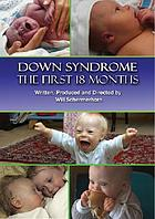Down syndrome the first 18 months