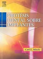 Prótesis dental sobre implantes
