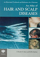An atlas of hair and scalp diseases