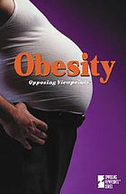 Obesity : opposing viewpoints