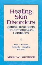 Healing skin disorders : natural treatments for dermatological conditions : acne, eczema, psoriasis, shingles, and more
