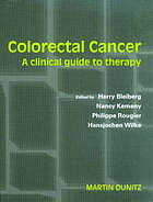 Colorectal cancer : a clinical guide to therapy