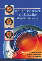 The blue line incision and refractive phacoemulsification