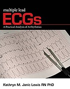 Multiple lead ECGs : a practical analysis of arrhythmias