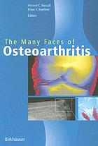 The many faces of osteoarthritis