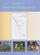 Your guide to total knee replacement