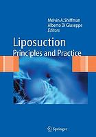 Liposuction : principles and practice
