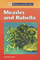 Measles and rubella