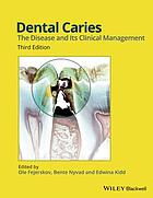 Dental caries : the disease and its clinical management