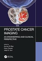 Prostate cancer imaging : an engineering and clinical perspective